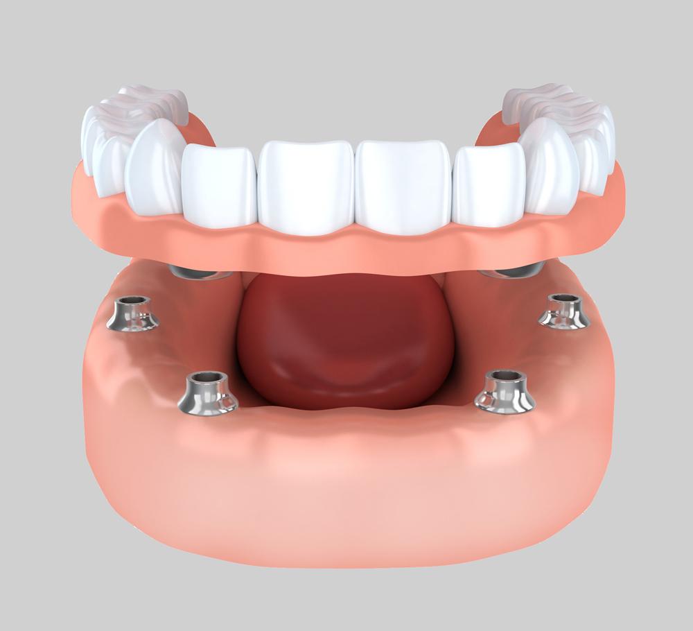 Dentures powell wy